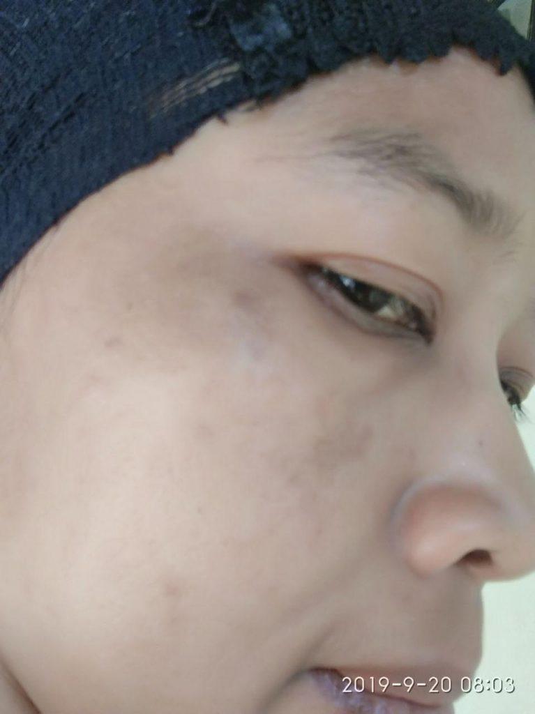 mengatasi kulit wajah kusam