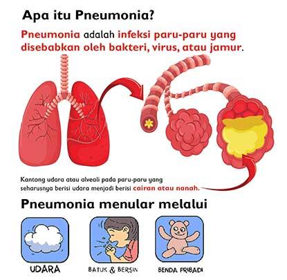 pencegahan pneumonia pada anak apa itu pneumonia